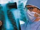 Започва кампания за безплатно изследване за туберколоза